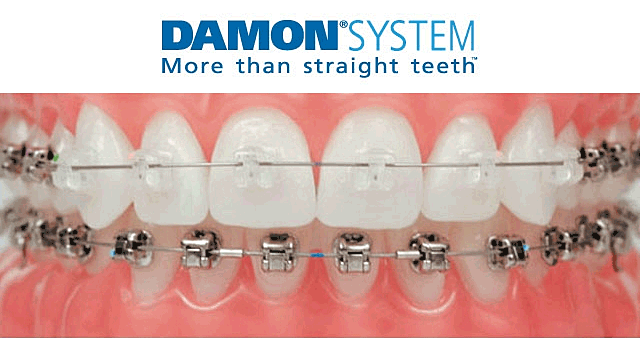 Sistema Damon