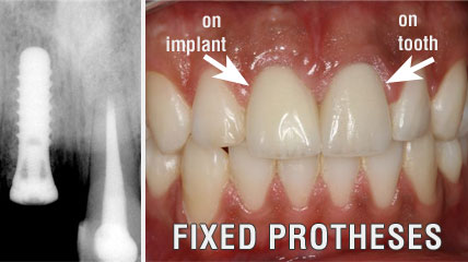 Dental implants protheses